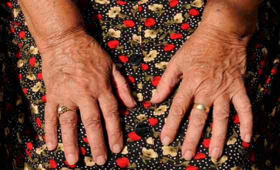 Arthrose des mains
