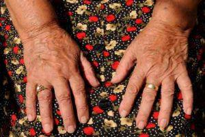 Prévention et soulagement de l'arthrose par l'alimentation